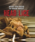 What You Need to Know About Head Lice