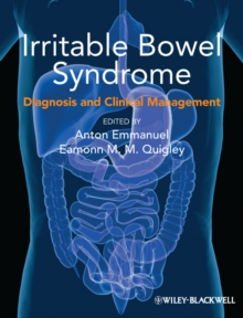 Irritable Bowel Syndrome : Diagnosis and Clinical Management, Paperback / softback Book