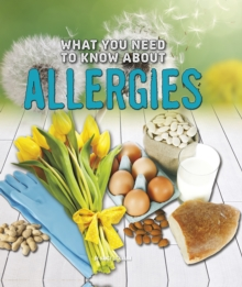 What You Need to Know About Allergies, Hardback Book